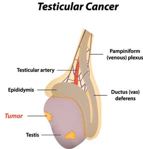 How Common is Testicular Cancer?