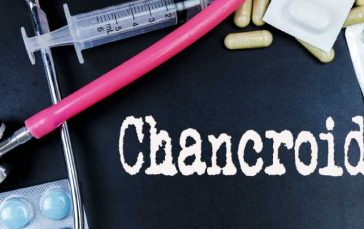 Chancroid: Learn the Facts About Chancroid (Sexually Transmitted Disease)