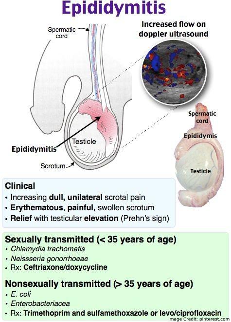 Epididymis Info