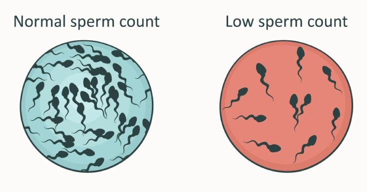 Pretesticular Azoospermia