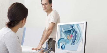 Study Finds Link between Sexual Activity & Prostate Cancer Risk