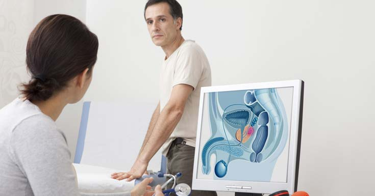 Prostate cancer sex activity