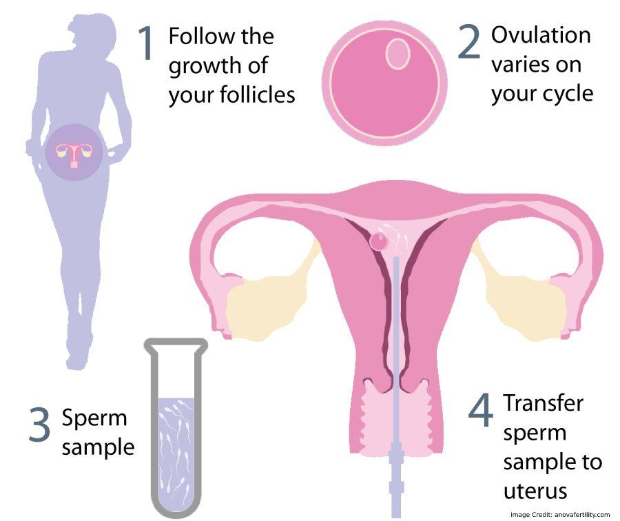 Sperm Flow Info