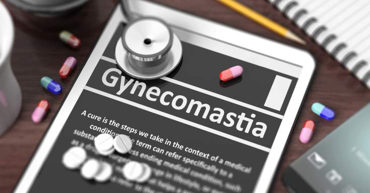 Diagnosis for Gynecomastia