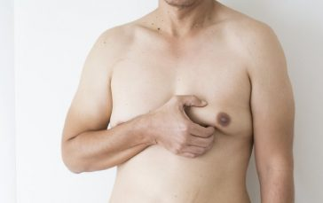 Things You Ought To Know About Gynecomastia