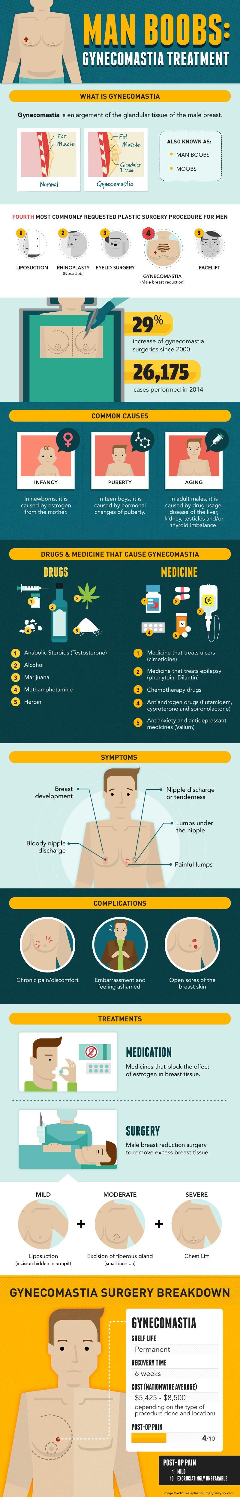 Gynecomastia Info