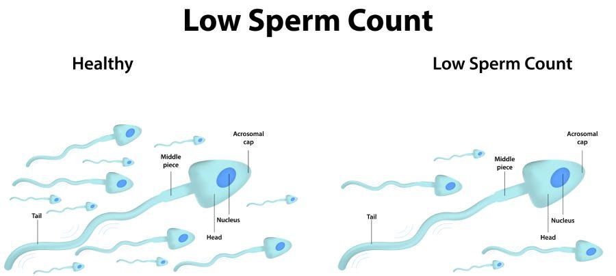 Outlook for Men with Oligospermia